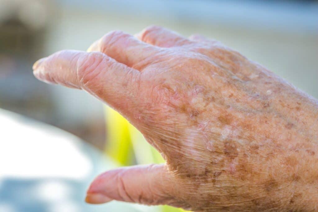 Home Care in Dana Point CA: Senior Skincare